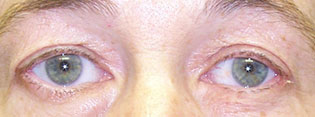 Post-Operative Photograph showing normal upper eyelid position